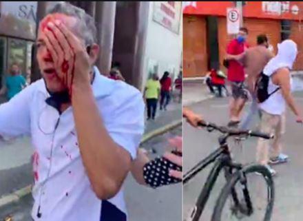 Em RECIFE: Polícia Militar ataca e agride  manifestantes anti-Bolsonaro. Uso desproporcional da força é gritante. Comandante da operação é afastado